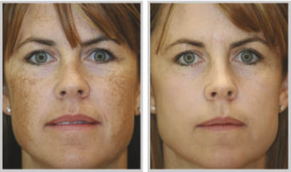 Sciton Laser Treatment - Inner Beauty Outer Glow